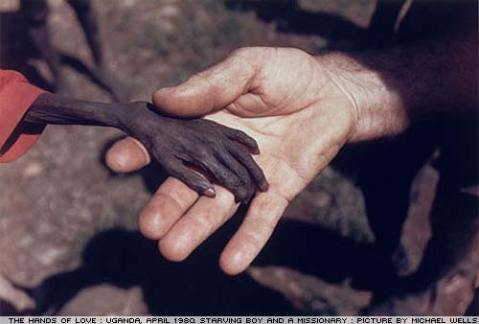 EMACIATED PERSON'S HAND